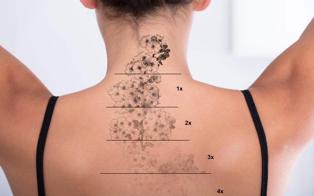 Laser Tattoo Removal | The Cosmetic Laser Center of Sheboygan